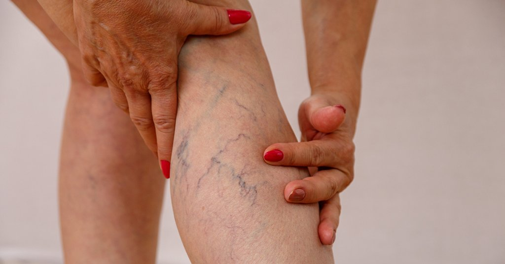 An elderly woman in white panties is touching her legs with cell; blog: varicose veins