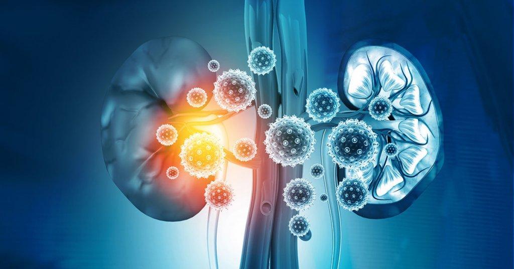 Kidney disease concept. 3d illustration; blog: causes of kidney failure