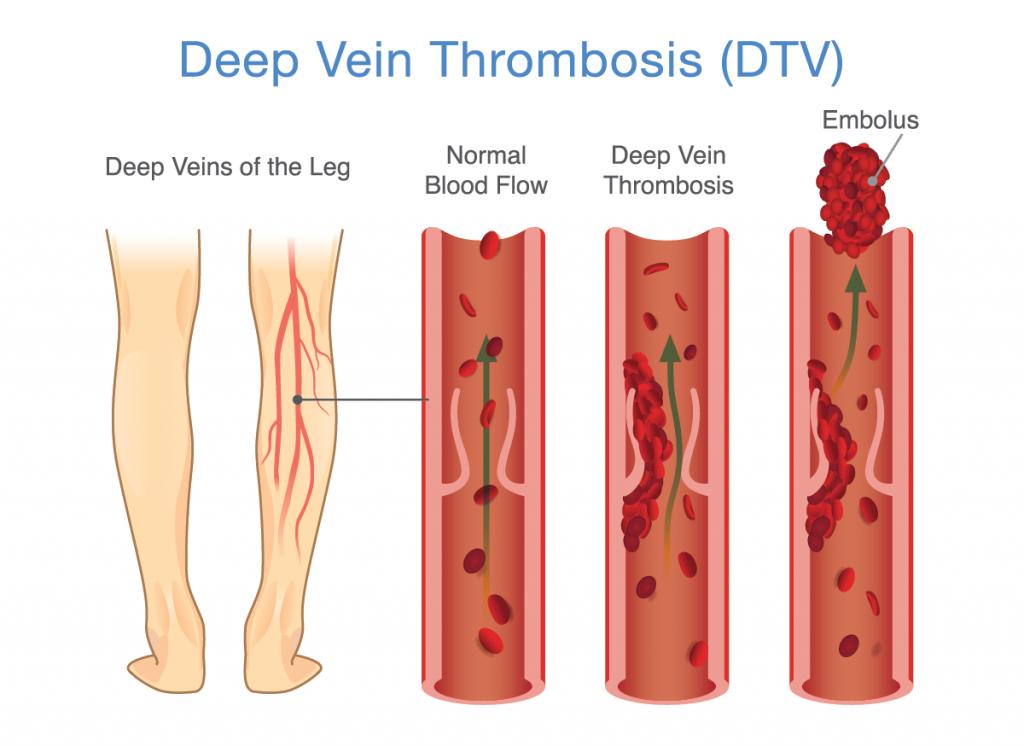 illustration of deep vein thrombosis; blog: DVT prevention