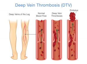 illustration of deep vein thrombosis; blog: DVT prevention